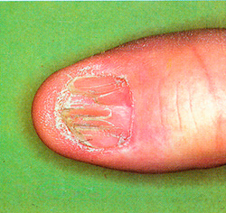 Правда ли, лимоном можно вылечить грибок на ногтях?