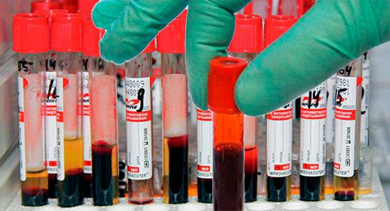 Экспресс-тест на сифилис, сдать анализы в клинике ИВ Мещериной ☎ +7 (495) 506 15 69