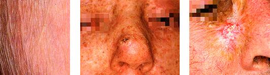 Атрофии кожи и близкие к ним заболевания, классификация атрофий кожи