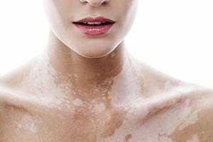 Витилиго, дисхромия кожи или депигментированные пятна