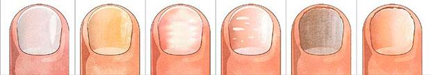 Экзематозные проявления на ногтях - лечение и профилактика