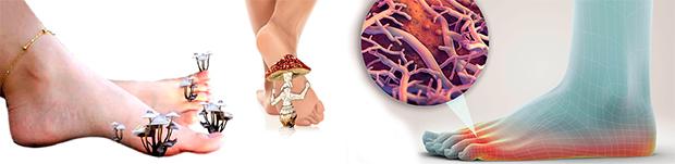 Чем отличается микоз стоп от не грибковых поражений