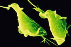 Лечение трихомониаза, инкубационный период заболевания